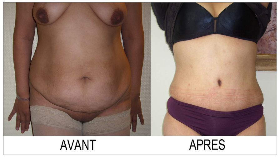 Plastie abdominale N°3