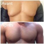 Gynecomastie_AVANT APRES